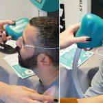 mes medicinska oprema uređaj za tretman suhog oka